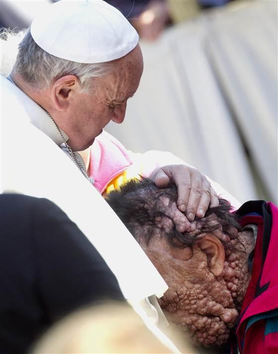 Memeluk kepala seseorang yang tubuhnya di penuhi oleh tumor dari neorofibramatosis.