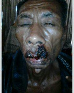 Marthen Taneo(40), korban terkaman buaya di sungai Noelmina